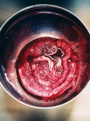 Yes, this is an actual placenta